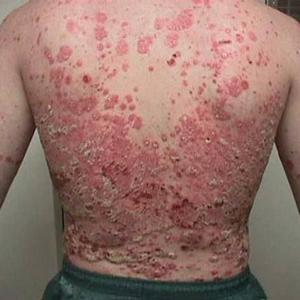 диагноз Псориаз и ламинин