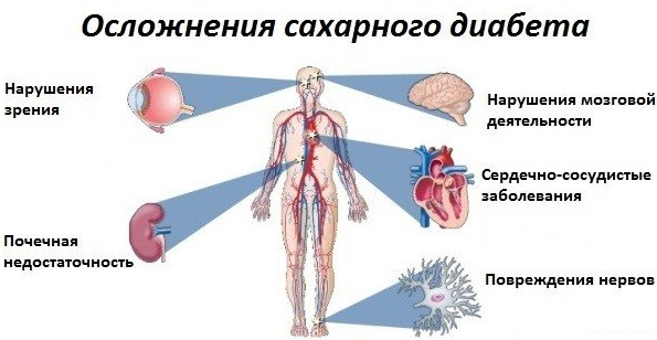 осложнения сахарного диабета: гангрена, инсульт, потеря зрения, отказ почек..