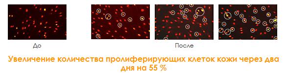 пролиферация-клеток-кожи