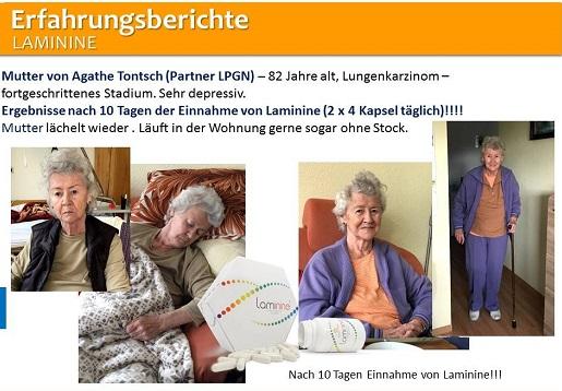 отзыв о применении ламинина из Германии