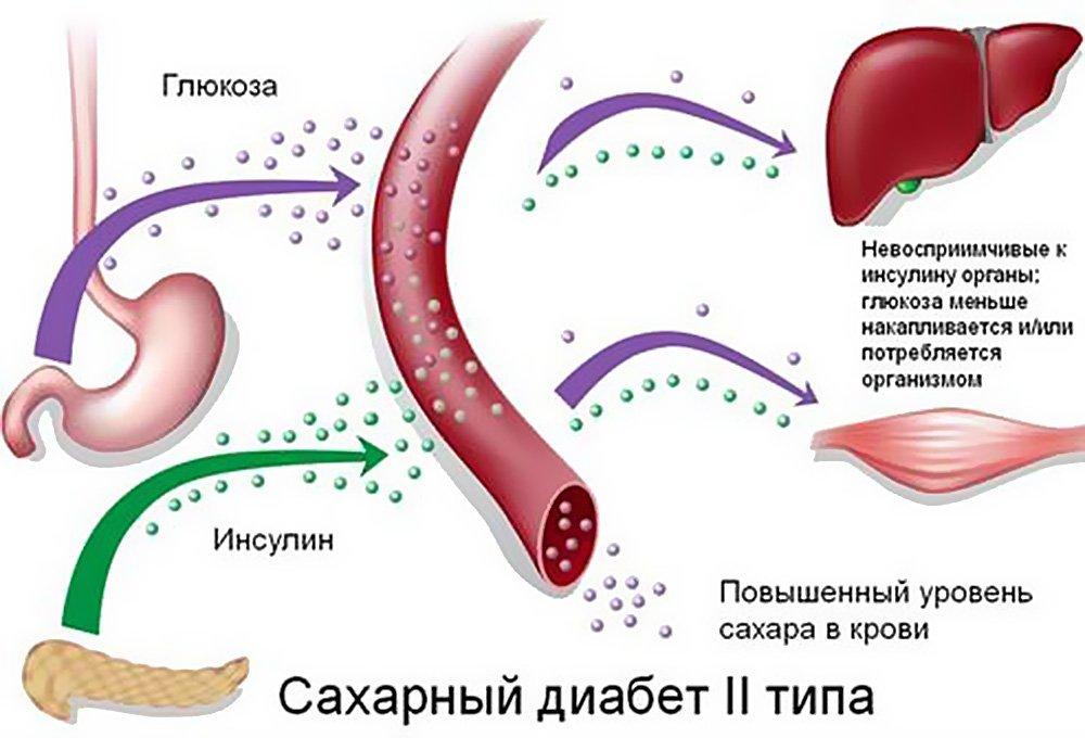 механизм возникновения сахарного диабета 2-го типа