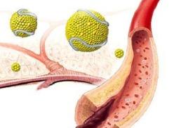 Ламинин Омега+++ – всегда чистые и открытые артерии