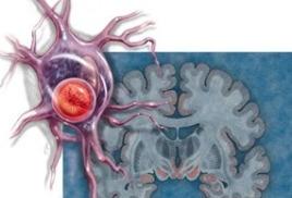 Ламинин и болезнь Паркинсона